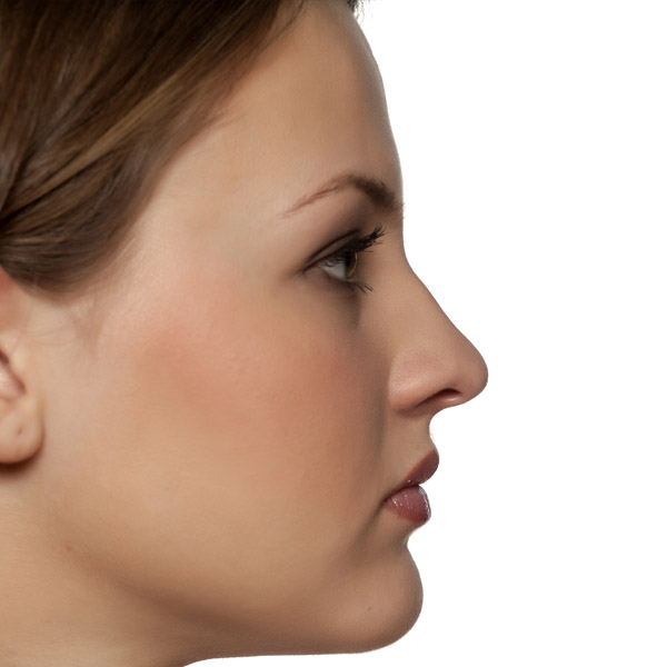 Rhinoplasty Bromley Nose Job After