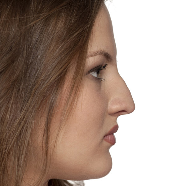 Rhinoplasty Bromley Nose Job Before
